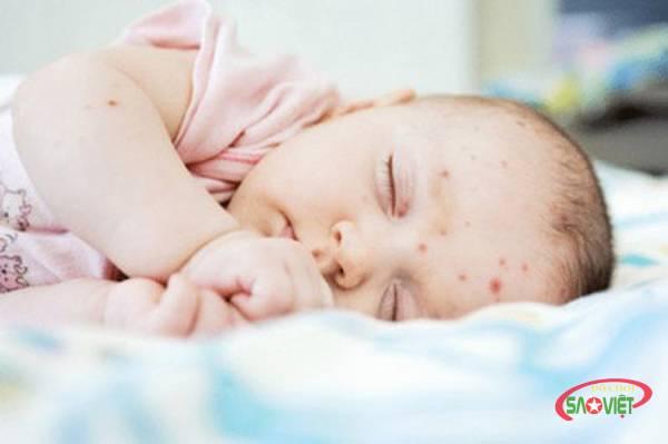 6 bệnh ngoài da ở trẻ em - cách nhận biết và điều trị hiệu quả