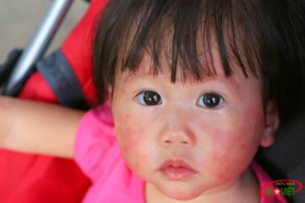 Bệnh zona ở trẻ em rất hiếm gặp nhưng đừng chủ quan