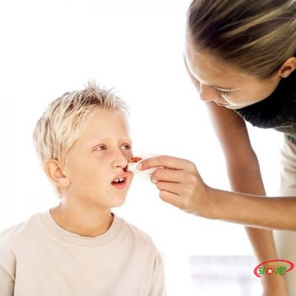 Cách xử lý khi trẻ bị chảy máu cam